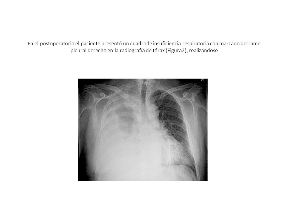 En el postoperatorio el paciente presentó un cuadrode insuficiencia respiratoria con marcado derrame pleural derecho en la radiografía de tórax (Figura2), realizándose