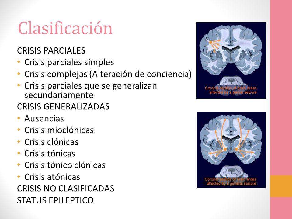 Clasificación CRISIS PARCIALES Crisis parciales simples