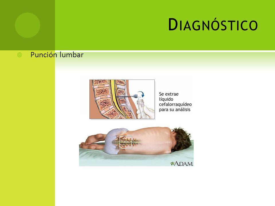 Diagnóstico Punción lumbar