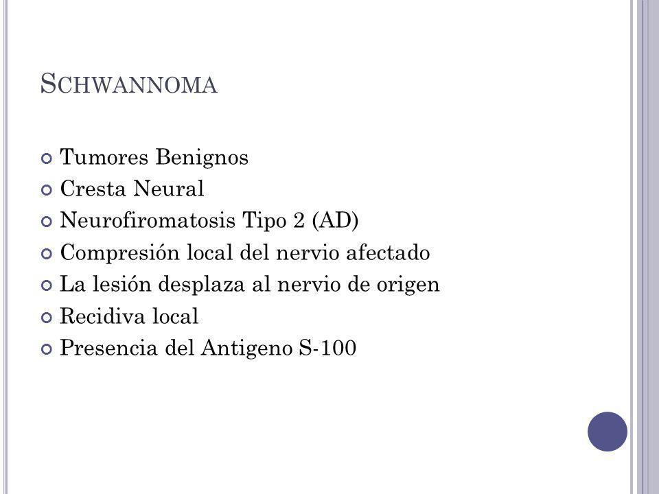 Schwannoma Tumores Benignos Cresta Neural Neurofiromatosis Tipo 2 (AD)
