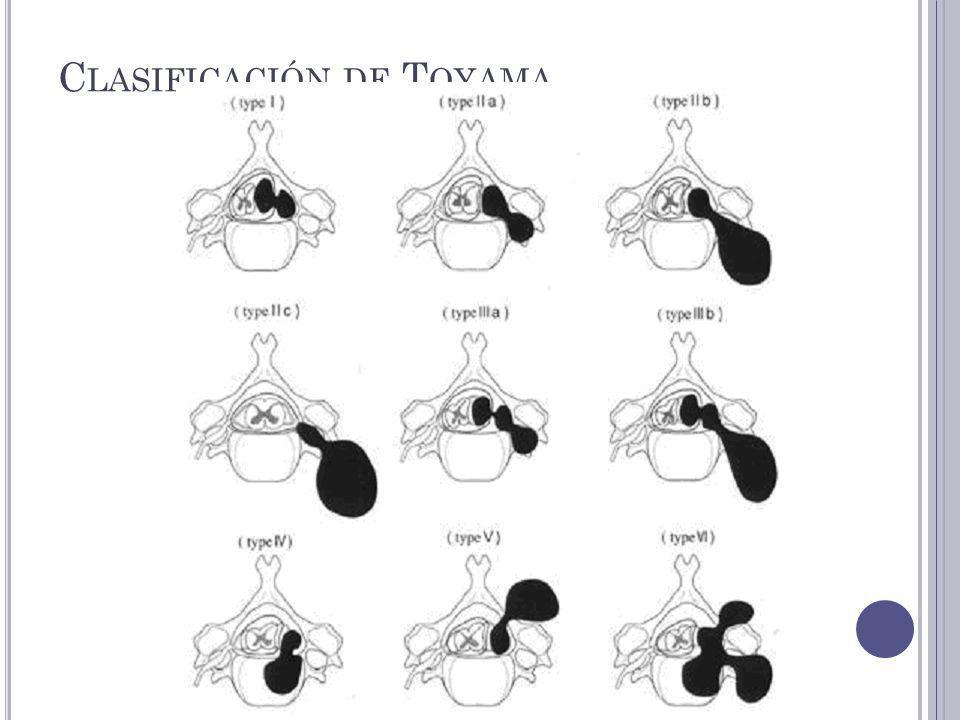 Clasificación de Toyama