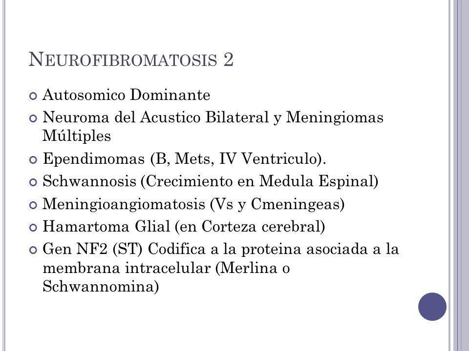 Neurofibromatosis 2 Autosomico Dominante