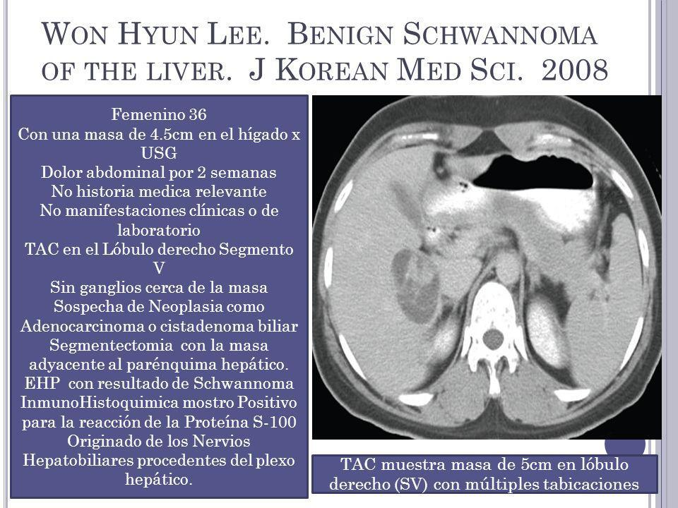 Won Hyun Lee. Benign Schwannoma of the liver. J Korean Med Sci. 2008
