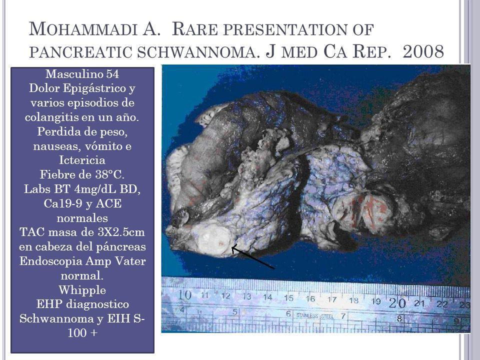 Mohammadi A. Rare presentation of pancreatic schwannoma. J med Ca Rep