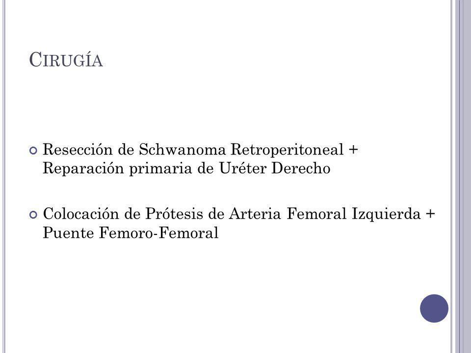 Cirugía Resección de Schwanoma Retroperitoneal + Reparación primaria de Uréter Derecho.
