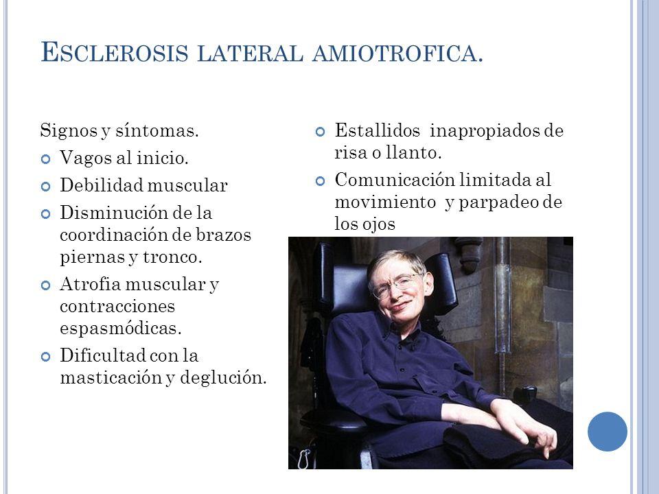 Esclerosis lateral amiotrofica.