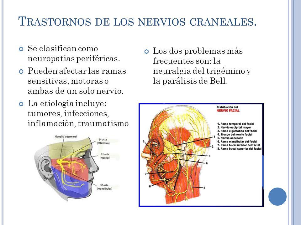 Trastornos de los nervios craneales.
