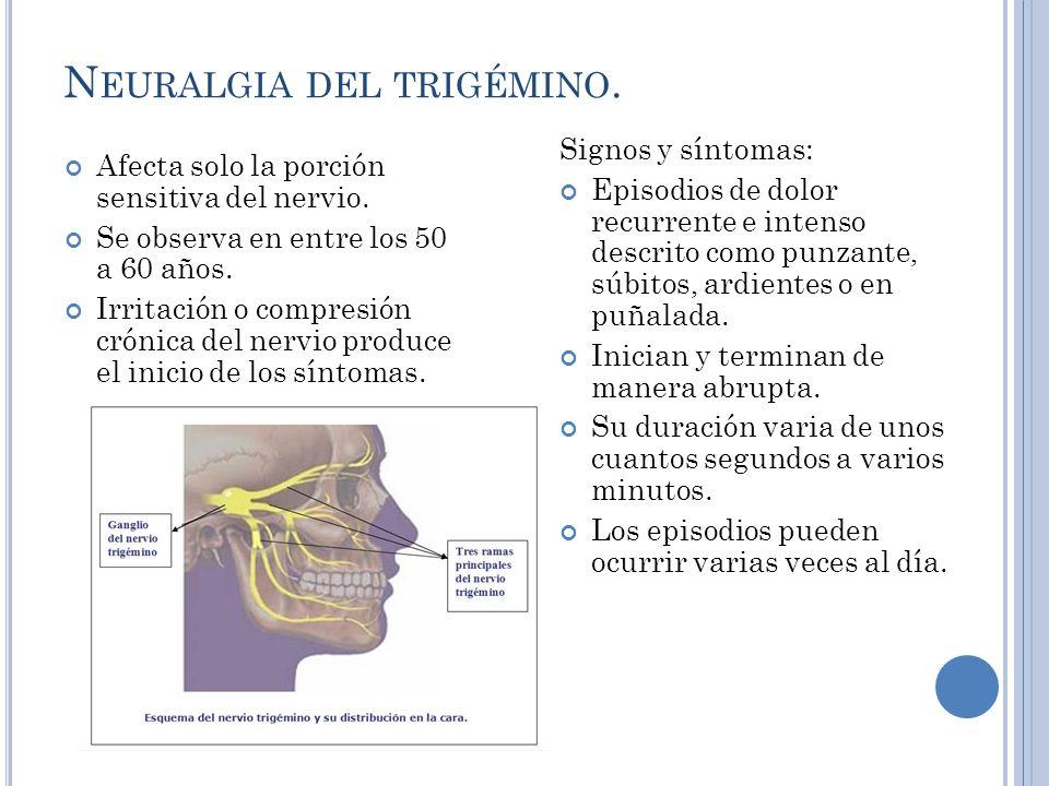 Neuralgia del trigémino.