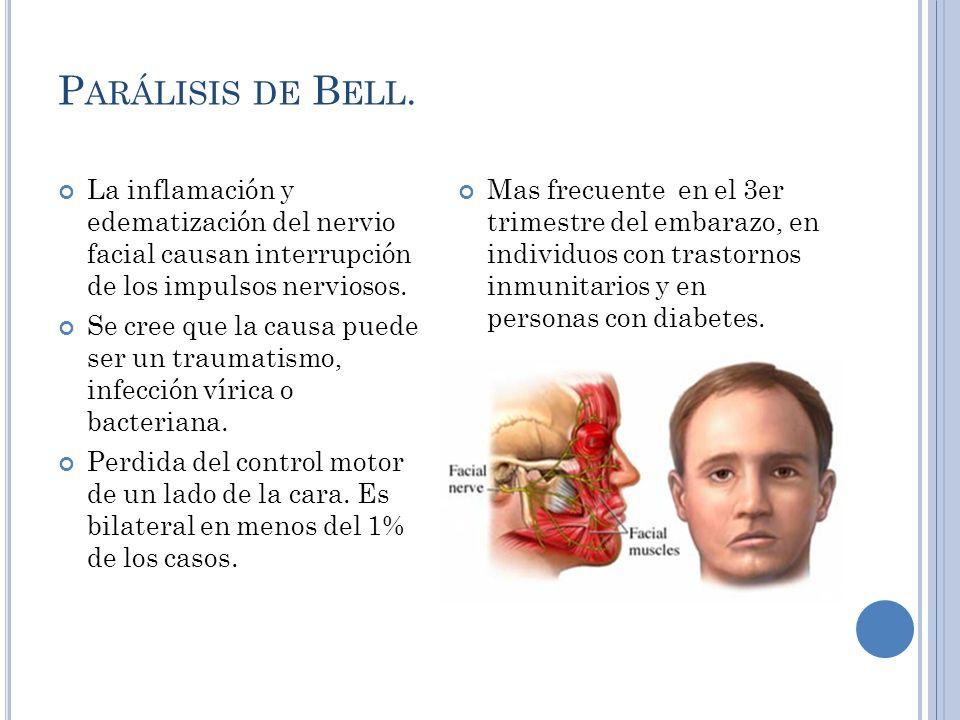 Parálisis de Bell. La inflamación y edematización del nervio facial causan interrupción de los impulsos nerviosos.