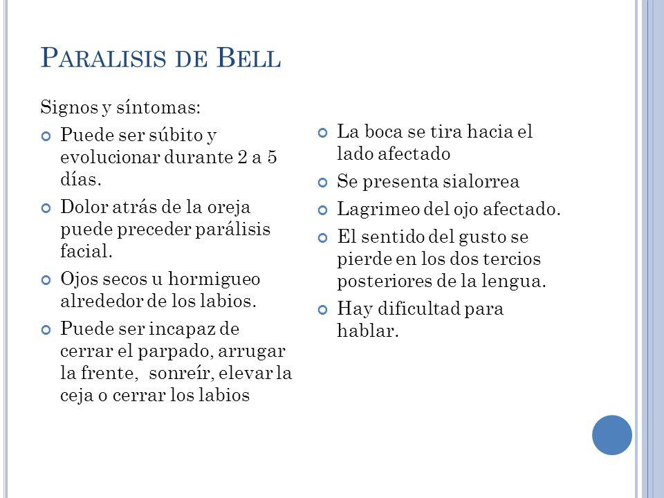 Paralisis de Bell Signos y síntomas: