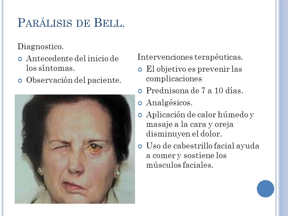 Parálisis de Bell. Diagnostico.
