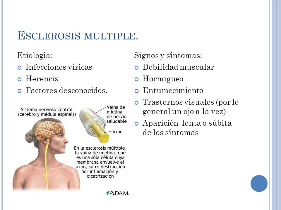 Esclerosis multiple. Etiología: Infecciones víricas Herencia