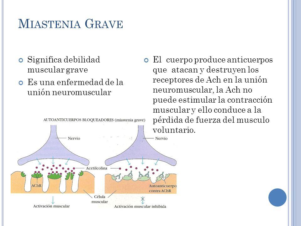 Miastenia Grave Significa debilidad muscular grave