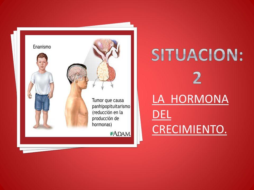 SITUACION: 2 LA HORMONA DEL CRECIMIENTO.