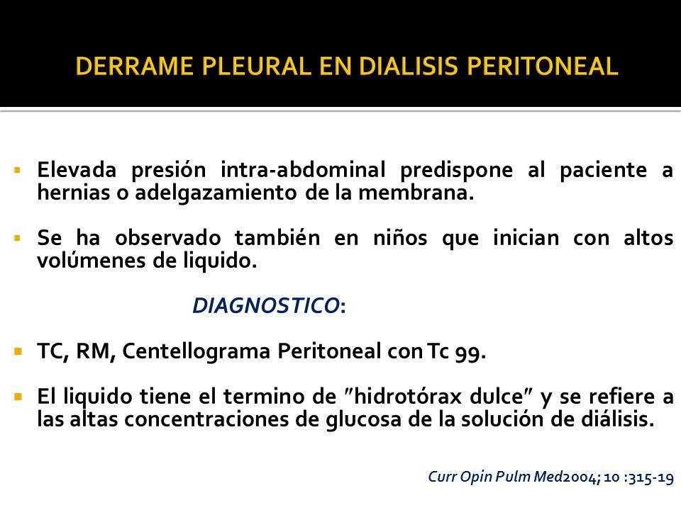 DERRAME PLEURAL EN DIALISIS PERITONEAL