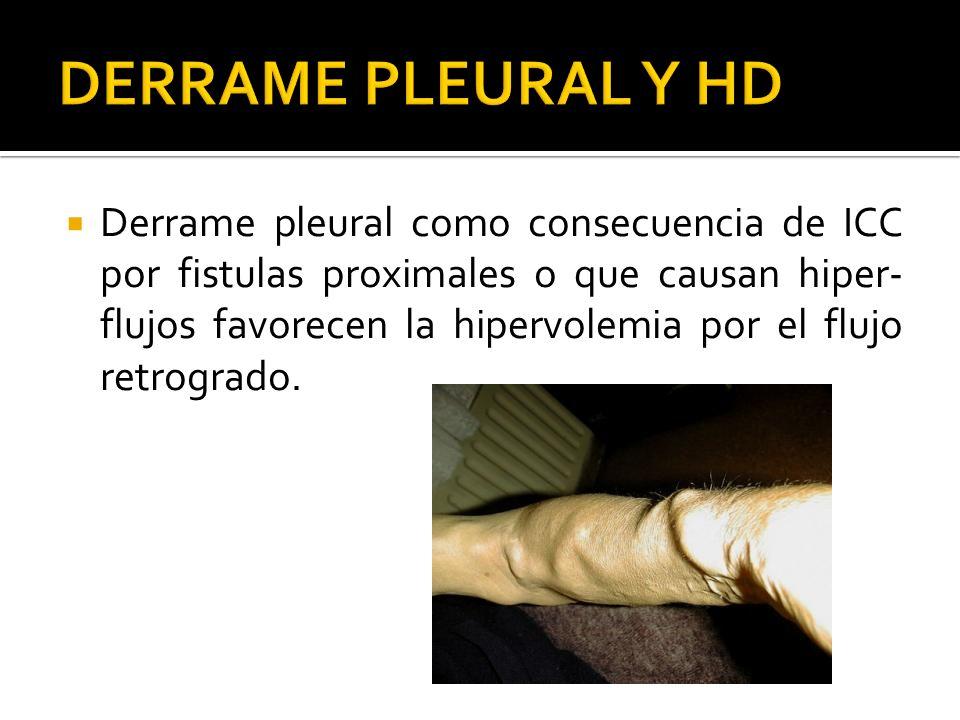 DERRAME PLEURAL Y HD