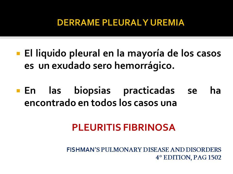 DERRAME PLEURAL Y UREMIA