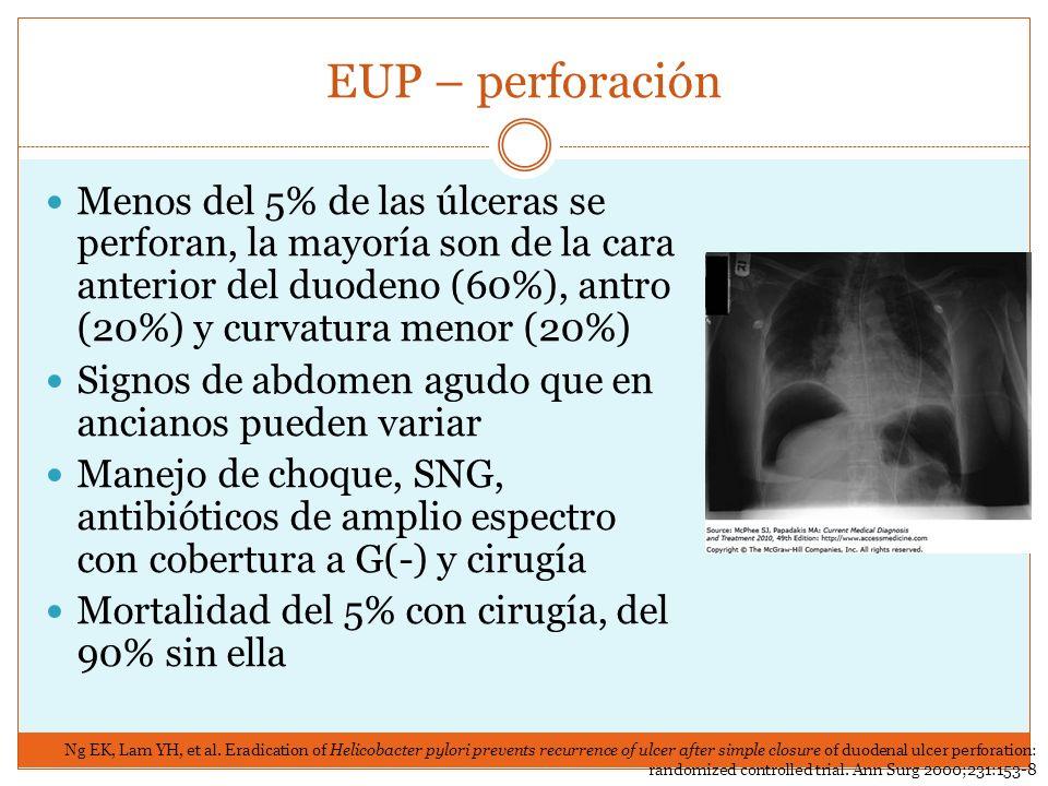 EUP – perforación Menos del 5% de las úlceras se perforan, la mayoría son de la cara anterior del duodeno (60%), antro (20%) y curvatura menor (20%)