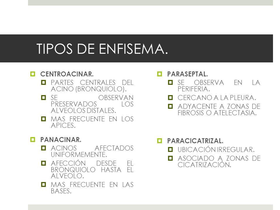 TIPOS DE ENFISEMA. CENTROACINAR.
