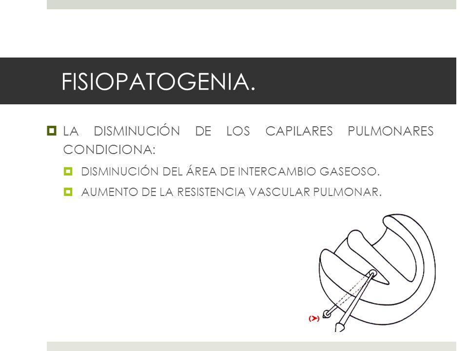 FISIOPATOGENIA. LA DISMINUCIÓN DE LOS CAPILARES PULMONARES CONDICIONA: