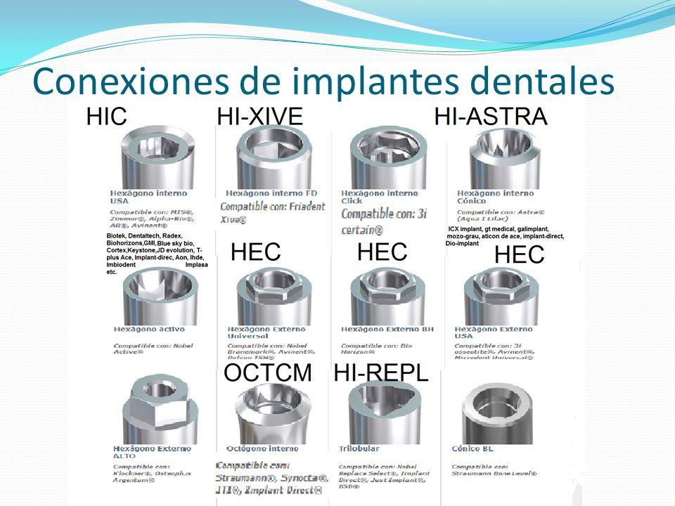 Conexiones de implantes dentales