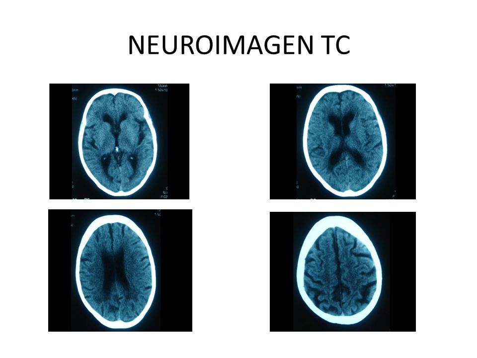 NEUROIMAGEN TC