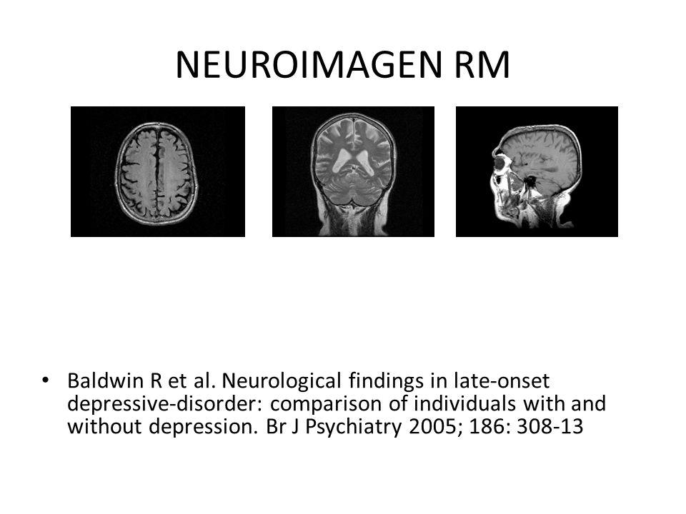 NEUROIMAGEN RM