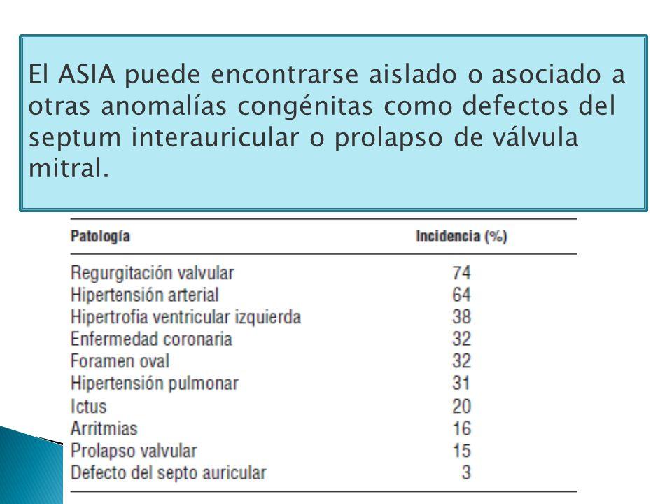 El ASIA puede encontrarse aislado o asociado a otras anomalías congénitas como defectos del septum interauricular o prolapso de válvula mitral.
