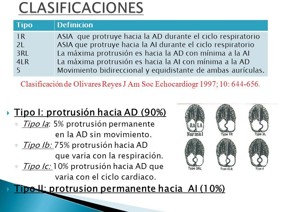 CLASIFICACIONES Tipo I: protrusión hacia AD (90%)