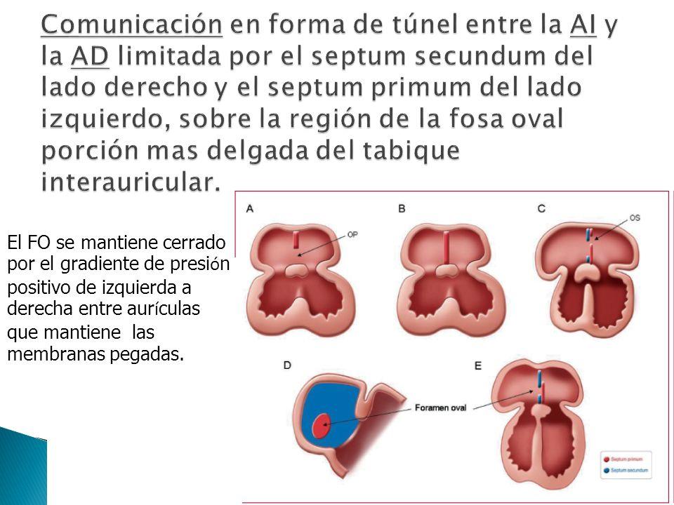 Comunicación en forma de túnel entre la AI y la AD limitada por el septum secundum del lado derecho y el septum primum del lado izquierdo, sobre la región de la fosa oval porción mas delgada del tabique interauricular.