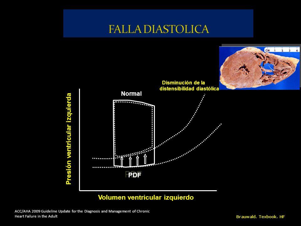 FALLA DIASTOLICA PDF Presión ventricular izquierda