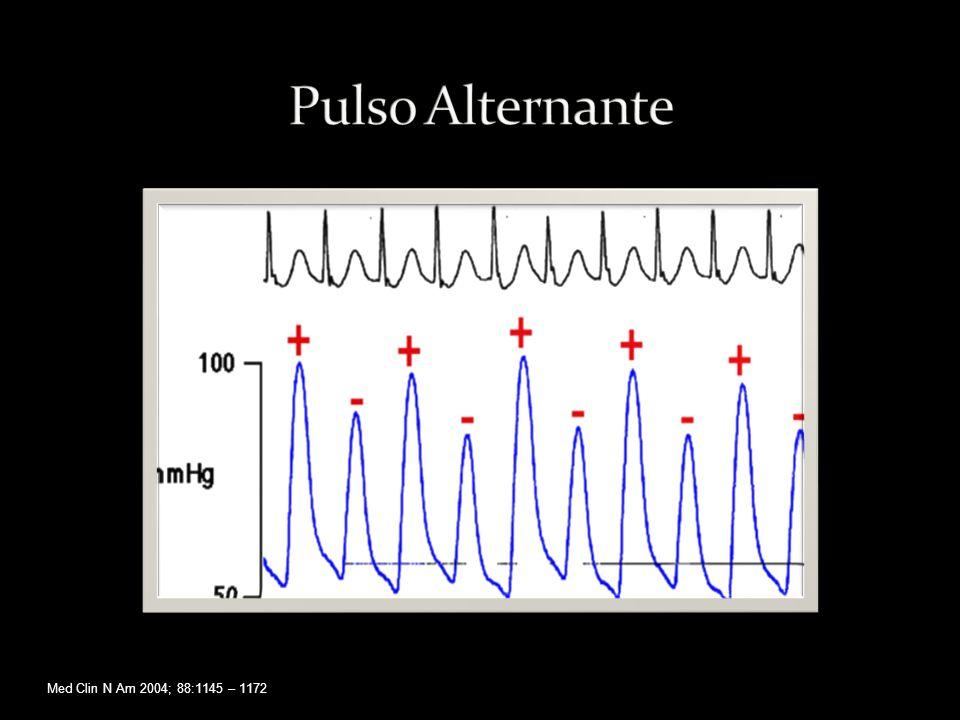 Pulso Alternante Med Clin N Am 2004; 88:1145 – 1172