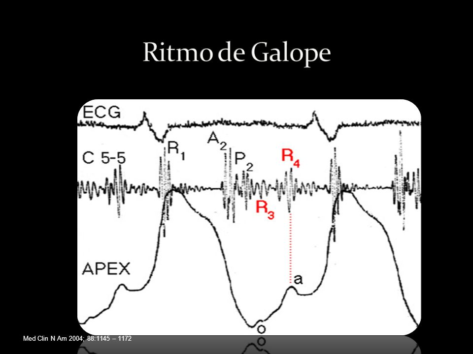 Ritmo de Galope Med Clin N Am 2004; 88:1145 – 1172