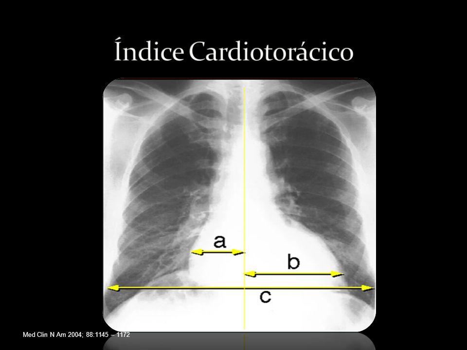Índice Cardiotorácico