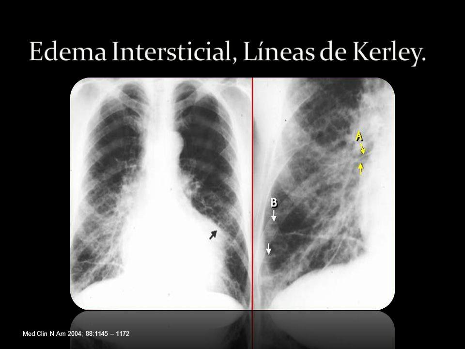 Edema Intersticial, Líneas de Kerley.