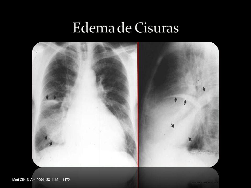 Edema de Cisuras Med Clin N Am 2004; 88:1145 – 1172