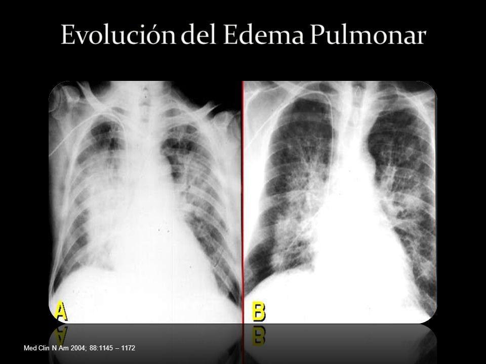 Evolución del Edema Pulmonar