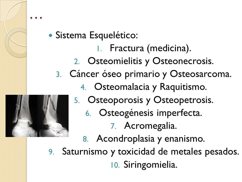 … Sistema Esquelético: Fractura (medicina).