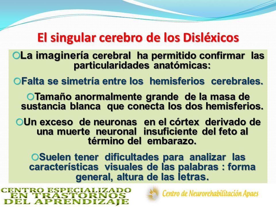 El singular cerebro de los Disléxicos