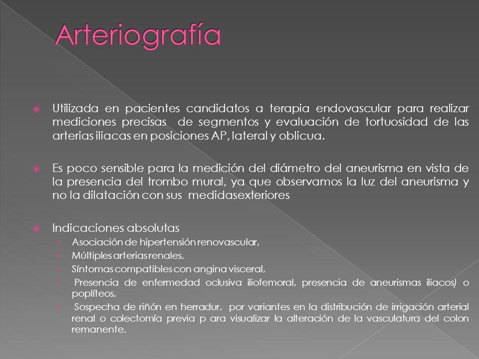 Arteriografía