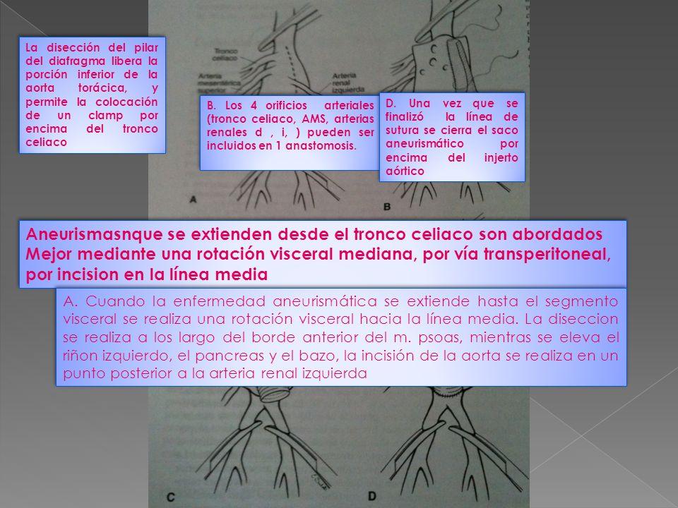 Aneurismasnque se extienden desde el tronco celiaco son abordados