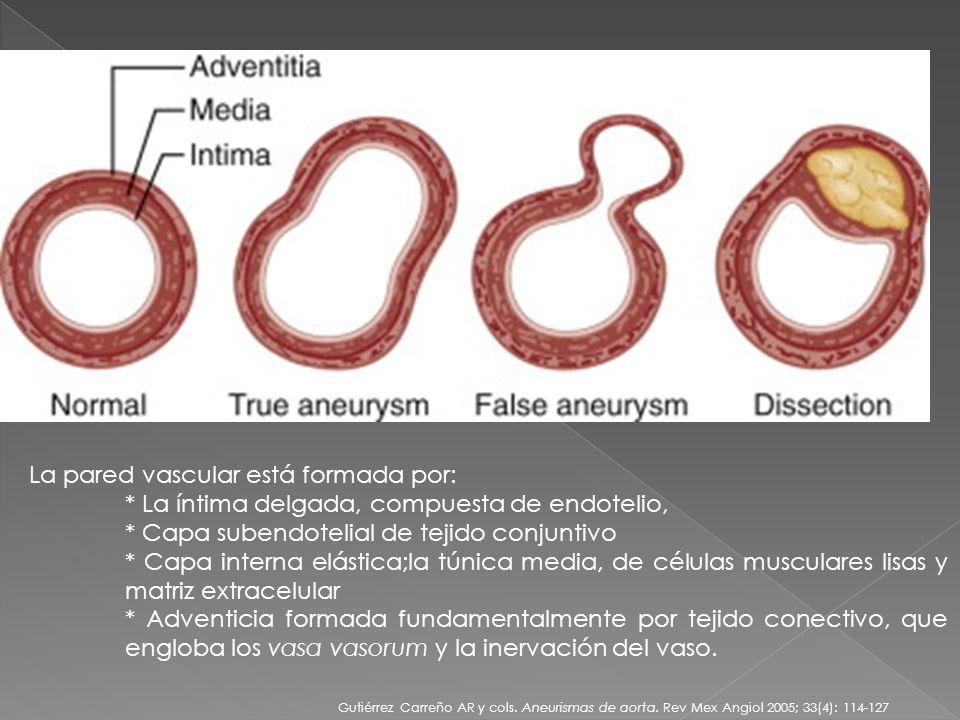 La pared vascular está formada por: