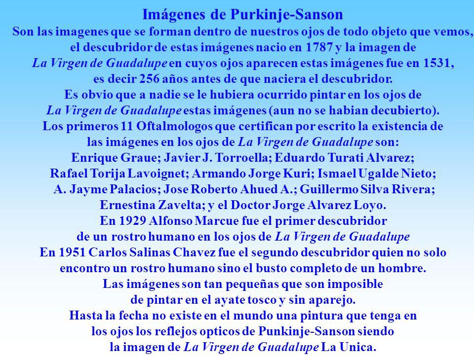 Imágenes de Purkinje-Sanson