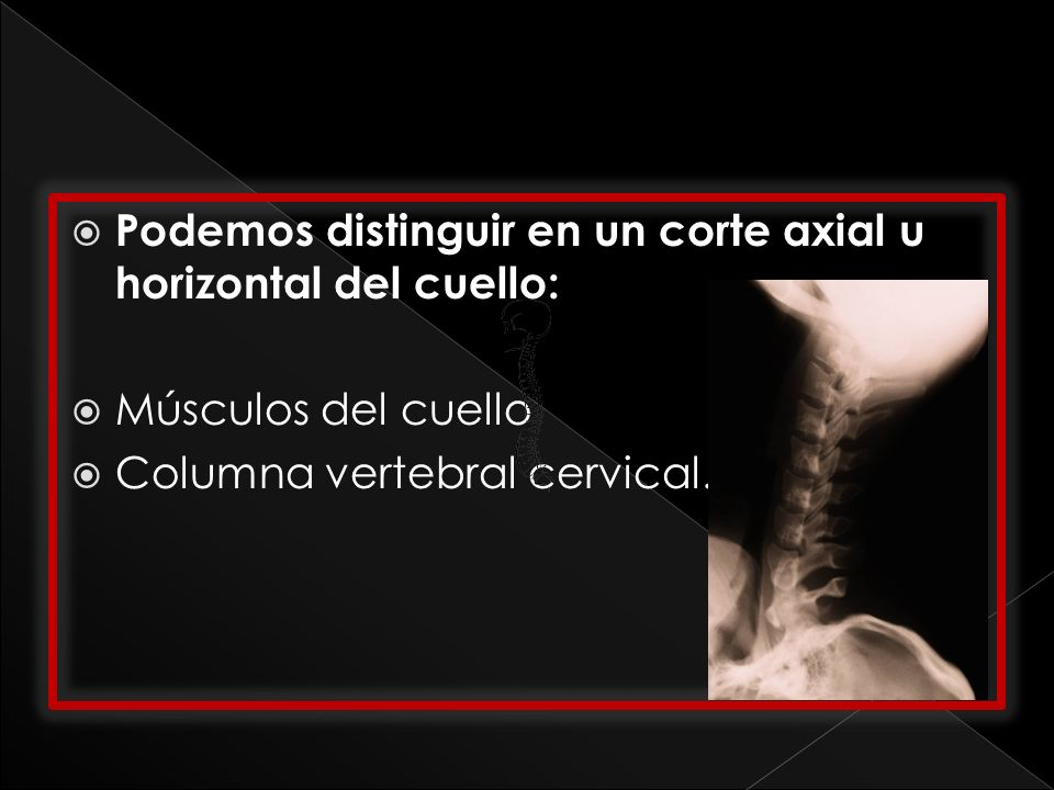 Podemos distinguir en un corte axial u horizontal del cuello: