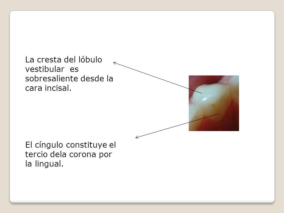 La cresta del lóbulo vestibular es sobresaliente desde la cara incisal.