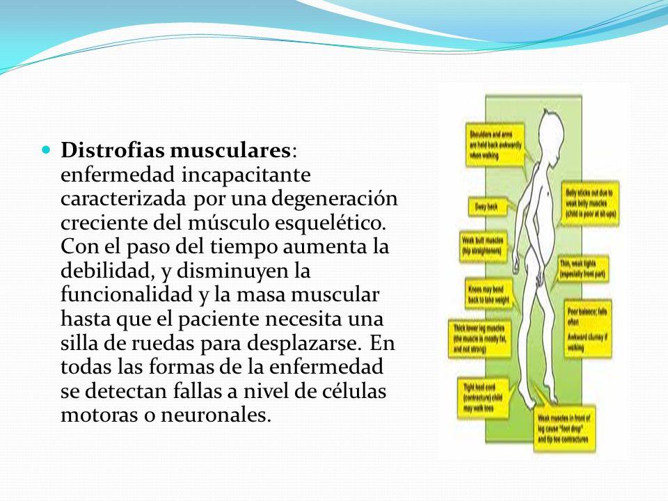 Distrofias musculares: enfermedad incapacitante caracterizada por una degeneración creciente del músculo esquelético.