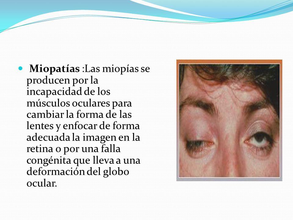 Miopatías :Las miopías se producen por la incapacidad de los músculos oculares para cambiar la forma de las lentes y enfocar de forma adecuada la imagen en la retina o por una falla congénita que lleva a una deformación del globo ocular.
