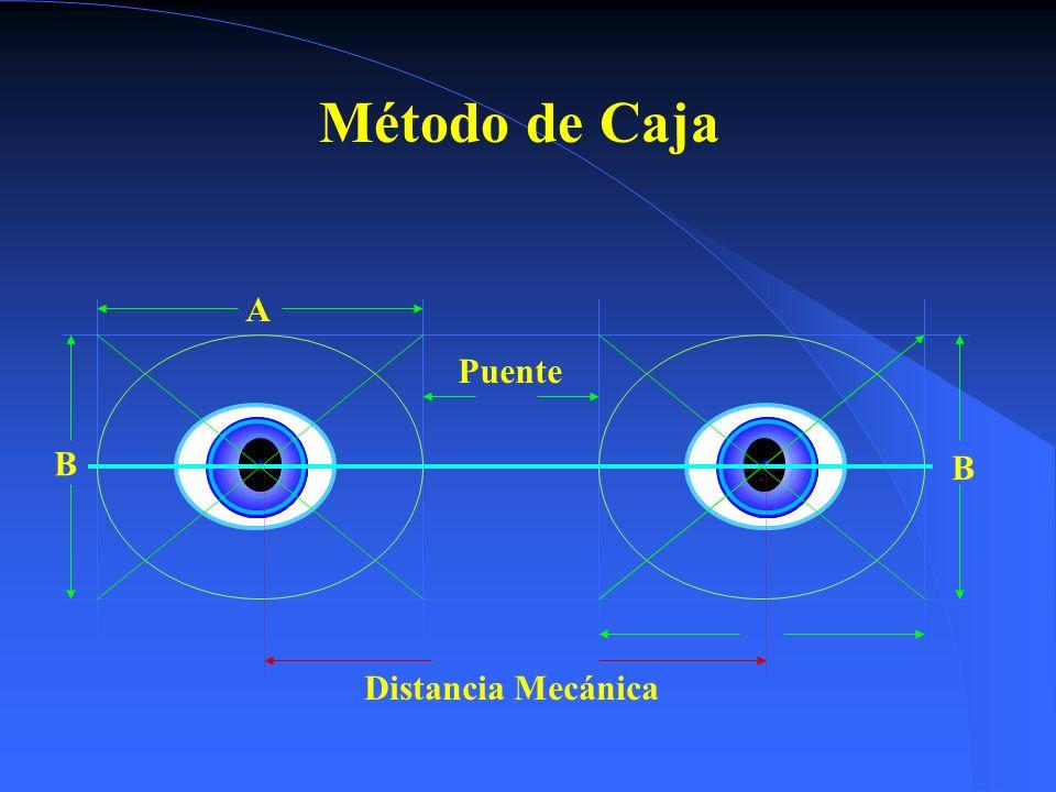 Método de Caja A Puente B B Distancia Mecánica