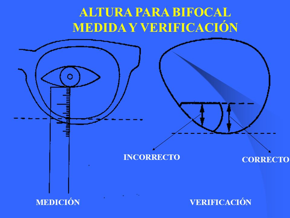 ALTURA PARA BIFOCAL MEDIDA Y VERIFICACIÓN