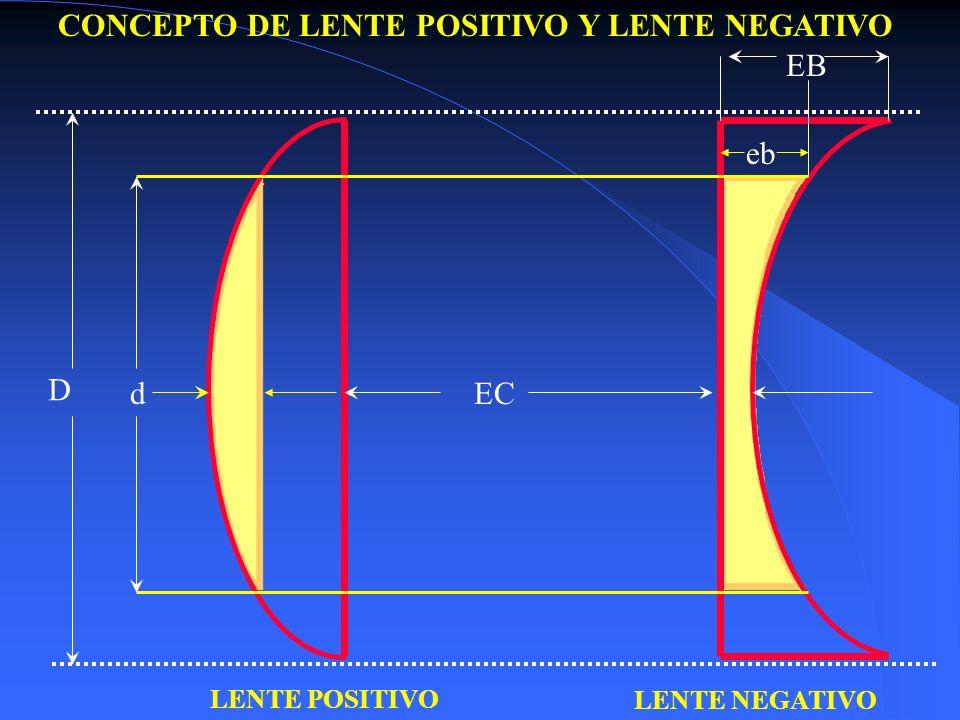 CONCEPTO DE LENTE POSITIVO Y LENTE NEGATIVO EB